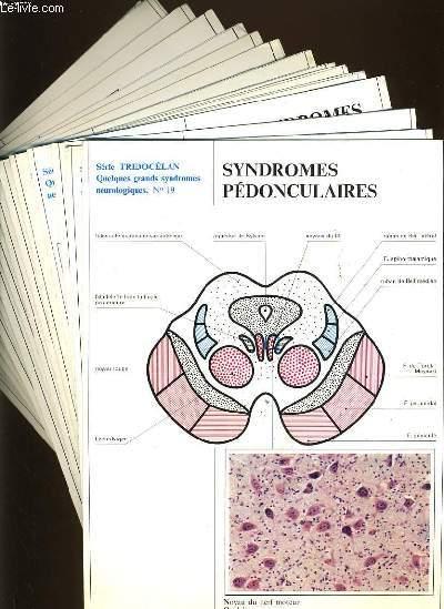 LOT DE 16 fiches de la série Tridocélan : syndromes pédonculaires, syndromes de l'artère sylvienne, syndrome polyradiculo-névritique, les syndromes rolandiques, les syndromes de la cérébrale antérieure, syndrome pariétal,  syndrome frontal, syndrome ménin